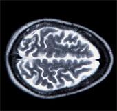 Tái tạo hình ảnh trong suy nghĩ nhờ chụp não