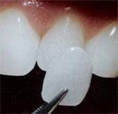 Nuôi răng thật từ tế bào
