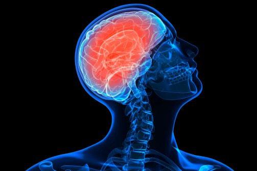 """Các nhà khoa học Canada đã """"té ngửa"""" khi vô tình phát hiện có vi khuẩn trong não người"""