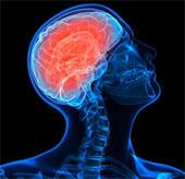 Sửng sốt khi phát hiện vi khuẩn trong não