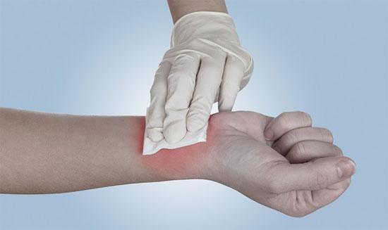 Băng gạc cứu thương có thể biến mất nếu Veti-Gel được sử dụng rộng rãi.