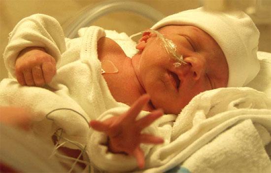 Trẻ sinh non, nhẹ cân có nguy cơ chấn thương não