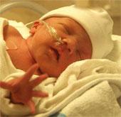 Công nghệ phát hiện sớm chấn thương não ở trẻ