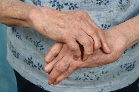 Viêm thấp khớp làm biến dạng các khớp