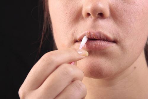 Virus herpes simplex (HSV) gây bệnh giộp môi