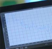 Video: Chip hỗ trợ smartphone dự đoán cơn đau tim