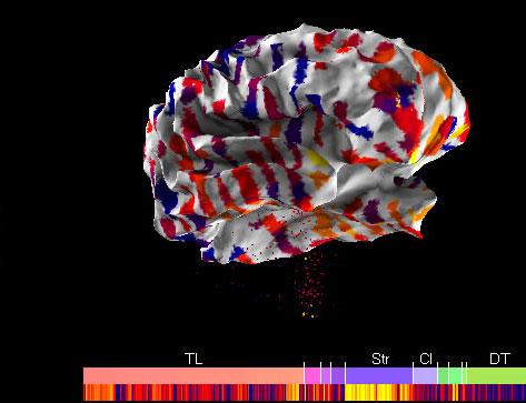 Tiết lộ bản đồ não người đầu tiên của thế giới