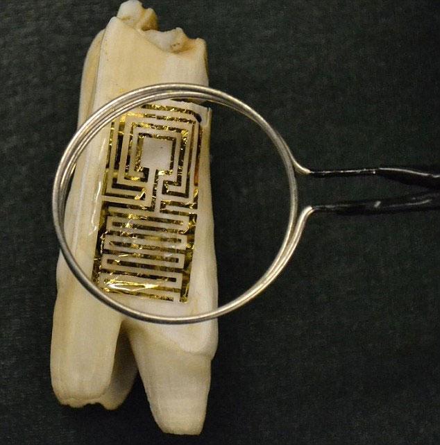 """Nhóm các nhà khoa học thuộc Đại học Princeton phát triển """"hình xăm"""" trên răng bệnh nhân - nó là thiết bị giúp các bác sĩ sớm nhận ra những dấu hiệu bệnh hay sự nhiễm trùng thông qua hơi thở của họ"""