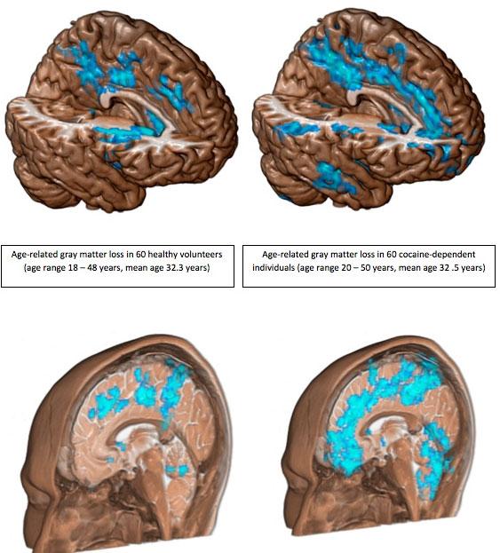 Hình ảnh chụp não cho thấy ở những người nghiện thuốc, chất xám mỏng đi với tốc độ gấp đôi so với người thường