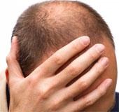 Nam giới hói đầu có nguy cơ mắc bệnh mạch vành