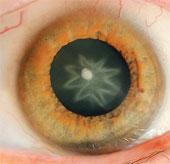 Hình sao xuất hiện trong mắt sau khi bị đấm