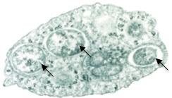 Vi khuẩn wolbachia