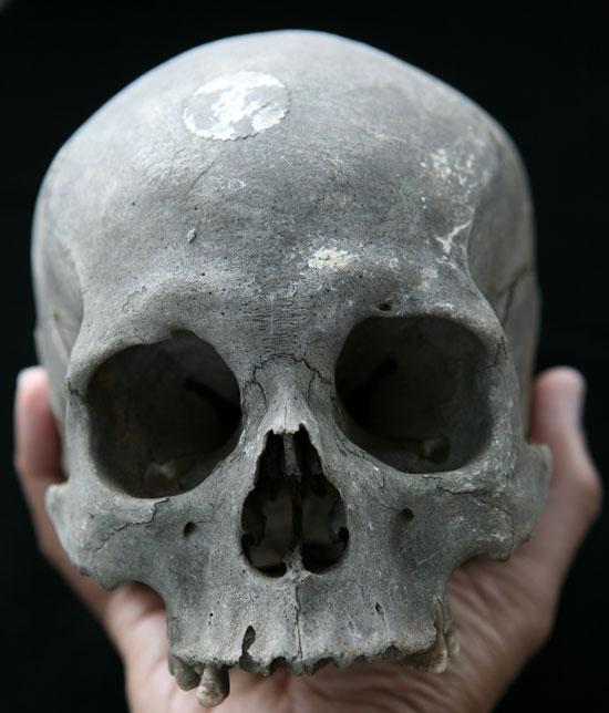 Tại sao xương bị đen sau khi chôn cất?