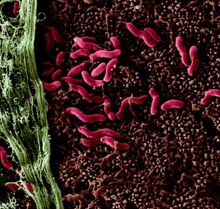 Vi khuẩn Helicobacter pylori có thể là thủ phạm gây ra căn bệnh Parkinson