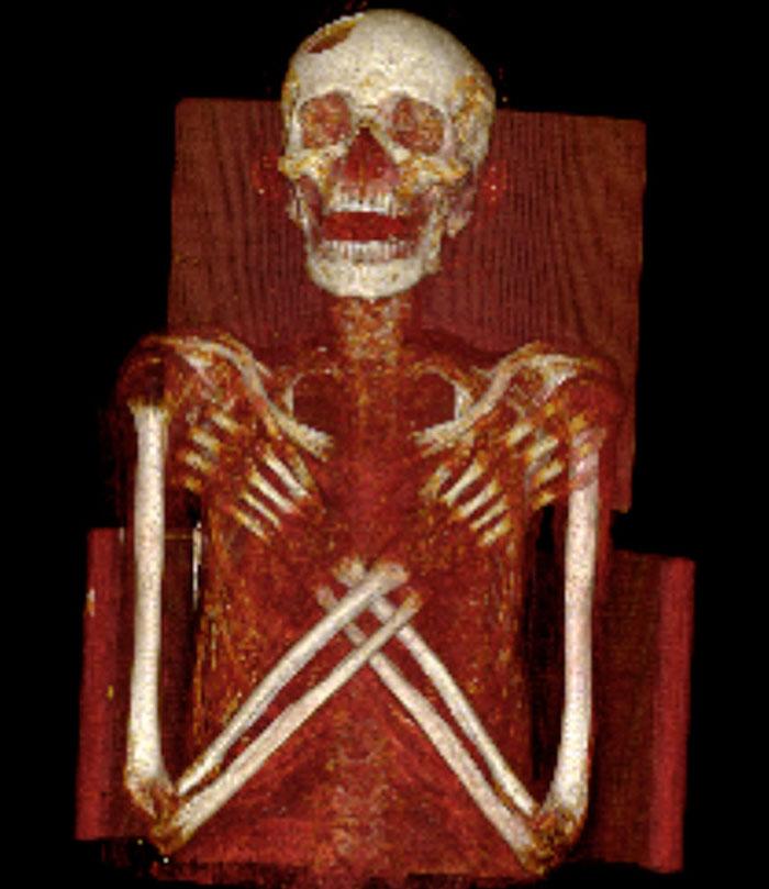 Hình ảnh quét cho thấy một lỗ thủng lớn trong xương đỉnh trán của xác ướp.