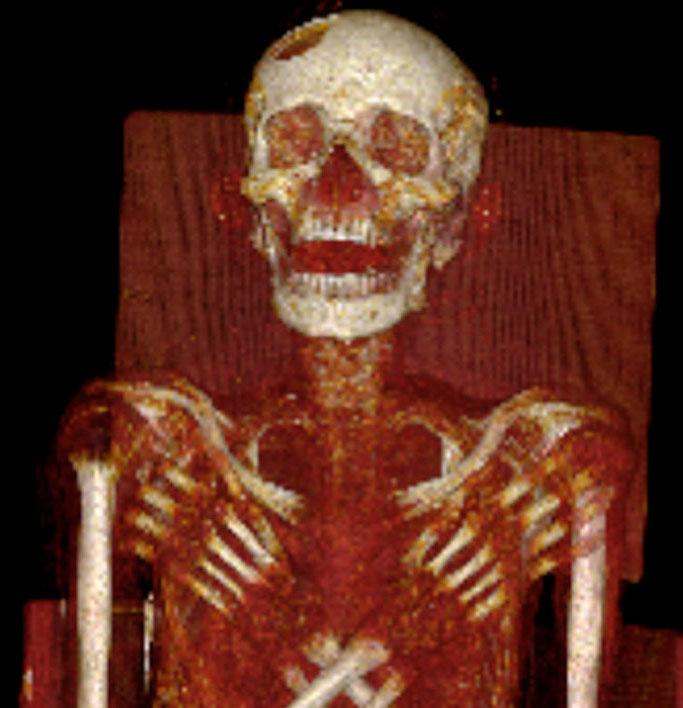 Căn bệnh kinh khủng trên xác ướp Ai Cập cổ đại