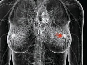 Xét nghiệm gene ATM giúp dự đoán trước ung thư vú