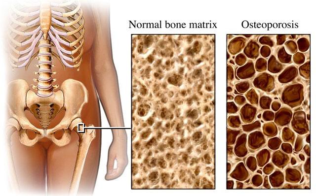 Phát hiện nhiều gene mới liên quan bệnh loãng xương