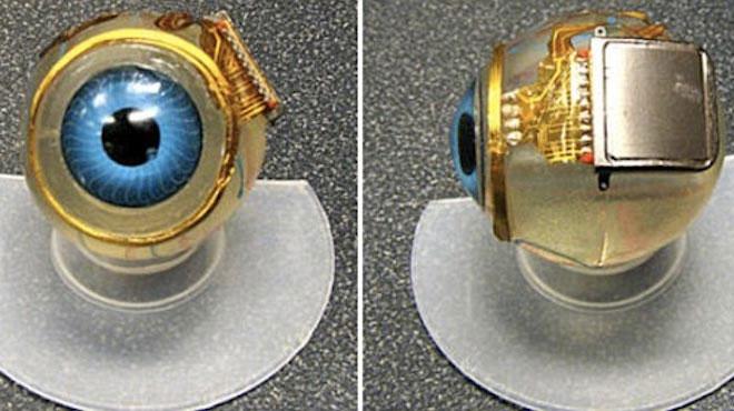 Chip 3mm được cấy vào nhãn cầu của người bệnh