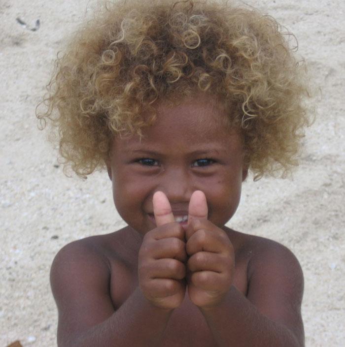 Kì lạ người da đen lại có tóc vàng