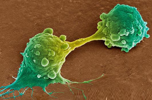 Tế bào ung thư đang phân chia