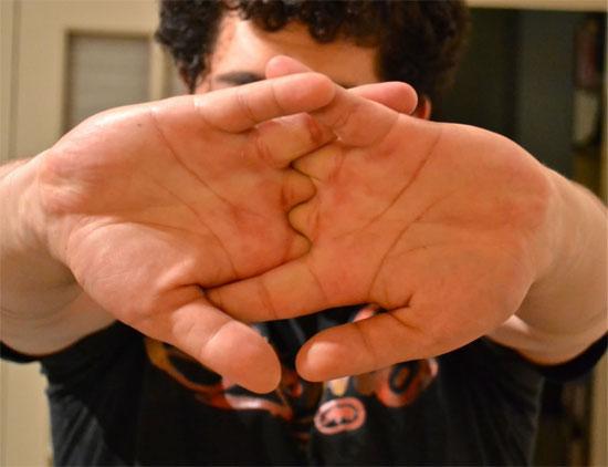 Bẻ khớp ngón tay