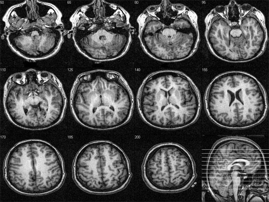 Chụp cắt lớp não để nhận dạng và đo mức độ cơn đau