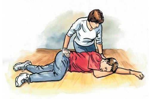 Khi có dấu hiệu của cơn thiếu máu não thoáng qua, cần đặt bệnh nhân nằm nghiêng như tư thế người trong hình minh họa và gọi cấp cứu.