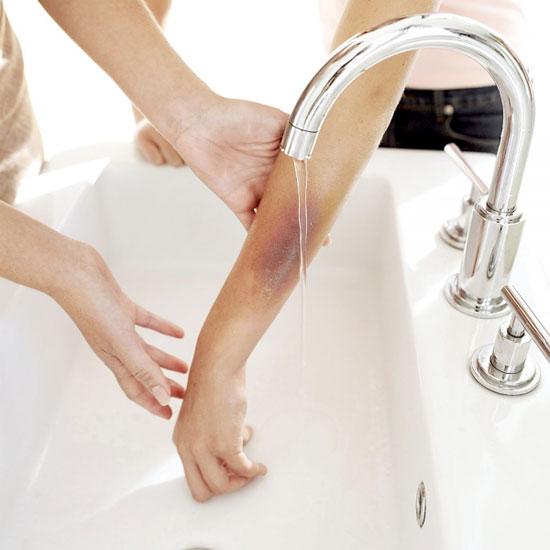Đối với bỏng một phần da, nếu được giữ sạch vết bỏng sẽ tự lành sau khoảng 1-4 tuần không cần điều trị gì mà cũng không để lại sẹo.