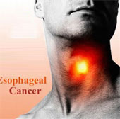 Phát hiện các biến thể gene gây ung thư thực quản