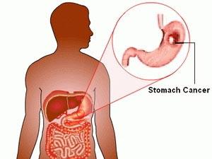 Phát hiện protein chặn ung thư dạ dày lan rộng