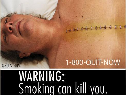Công bố 9 hình ảnh minh họa tác hại của thuốc lá
