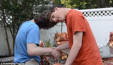 Giới tính lạ thường của cặp sinh đôi dính đầu