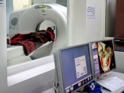 Chụp CT, trẻ có nguy cơ ung thư não cao