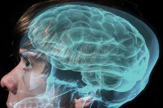 150 bộ não nghiên cứu chứng tự kỷ bị hủy hoại