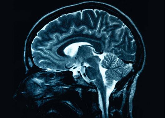 Ion Magie có thể giúp duy trì cơ chế bộ nhớ dài hạn