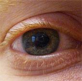 Sức khỏe đời sống-Israel phát triển công nghệ giúp người khiếm thị