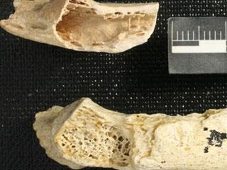 Chứng cứ bệnh ung thư ở người Neanderthal