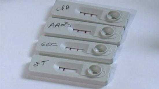 Thiết bị xét nghiệm nhanh bệnh phong