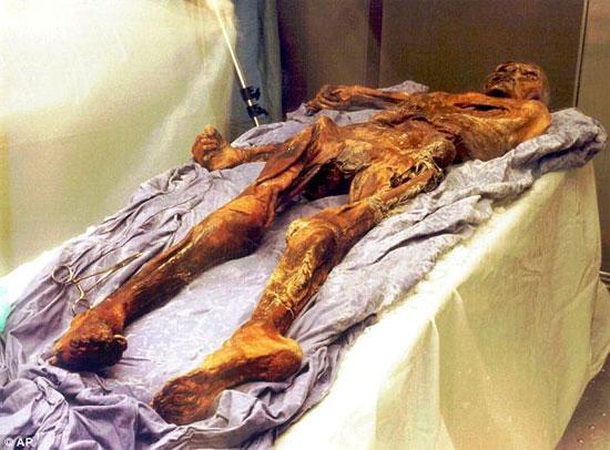 Nguyên nhân mới về cái chết của người băng Otzi