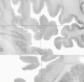 Thiết lập mô hình 3D đầu tiên của bộ não người