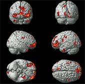 Hoạt động não ứng với mỗi cảm xúc của con người