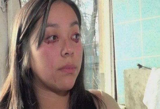 Cô gái mắc bệnh khóc ra máu