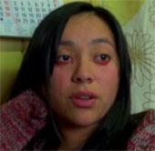 Video: Cô gái mắc bệnh khóc ra máu