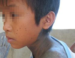 Cậu bé Quảng Bình mọc lông như người sói