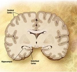 Bệnh Alzheimer có thể phòng ngừa được