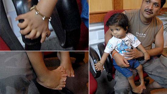 Cậu bé có 34 ngón tay, chân ở Ấn Độ