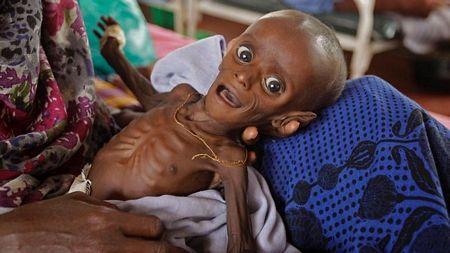 Hạn hán ở Châu Phi: Bé 7 tháng tuổi cân nặng bằng trẻ sơ sinh