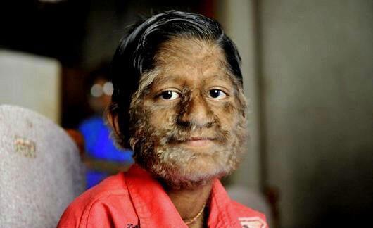 """Cậu bé Pruthviraj Patil, 11 tuổi, người Ấn Độ bị mắc """"hội chứng người sói""""."""