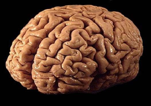 Não của thiên tài và kẻ đần độn giống nhau 95%